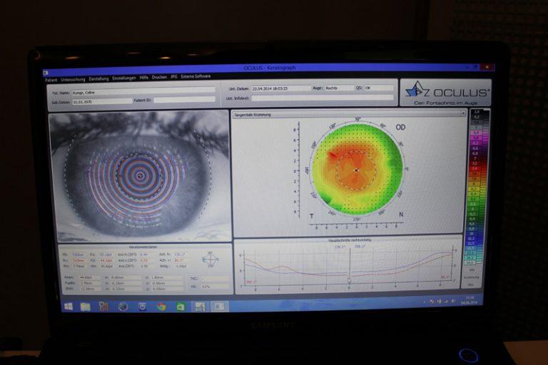 Unser Ketograph von Occulus misst die Topographie Deiner Hornhaut mit 22.000 Messpunkten